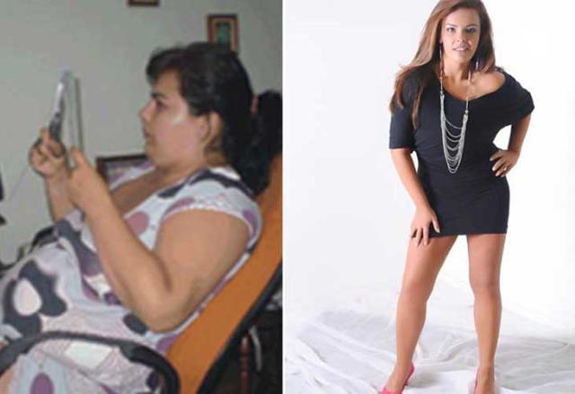 """""""Desisti da bariátrica no dia da cirurgia e emagreci 55 quilos"""", conta jovem que superou a obesidade Arquivo Pessoal/"""