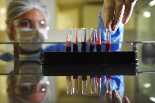 Estudo comprova eficácia de técnica que identifica câncer no sangue Diego Vara/Agencia RBS