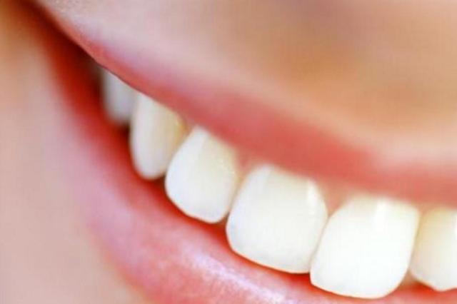 Do laser ao bochecho: veja seis formas de clarear os dentes Michal Bednarek/Deposit Photos