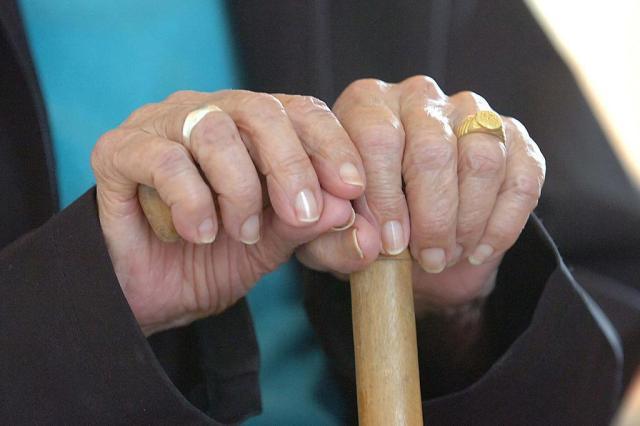 Estudo mostra que sinais de envelhecimento podem ser visíveis aos 20 anos Julio Cavalheiro/Agencia RBS