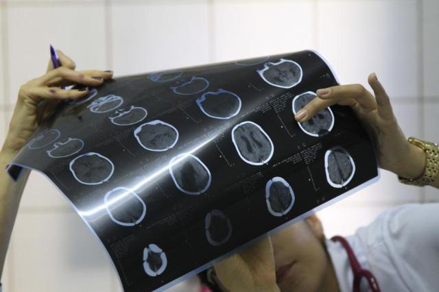 """Suspeita não tem """"base científica"""", diz fabricante de larvicida que pode ter relação com microcefalia GUGA MATOS/JC IMAGEM/Estadão Conteúdo"""