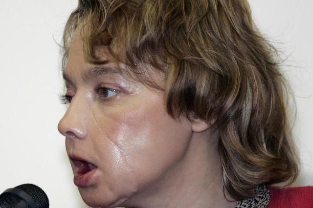 Morre primeira paciente com rosto transplantado no mundo Ver Descrição/Ver Descrição