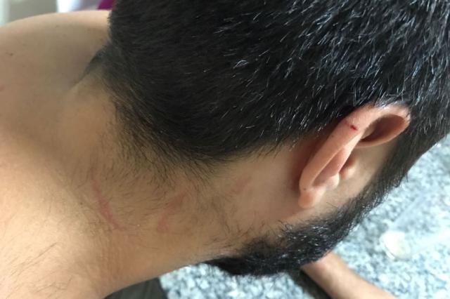 Torcedor gremista diz ter sido agredido pela BM na Arena Arquivo pessoal/