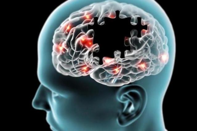 Uso de hormônio se mostra promissor para tratamento de doenças neurodegenerativas Naeblys-Shutterstock/Reprodução