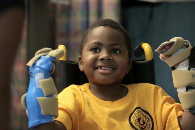 Primeiro transplante de mão em criança é considerado um sucesso Children's Hospital of Philadelphia/AFP/CHOP