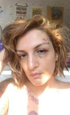 Escritora Clara Averbuck desabafa no Instagram após denunciar estupro e mostra rosto machucado Instagram/Reprodução